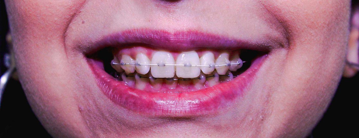 Ortodoncia Estética Económica - CIDR- Phantos